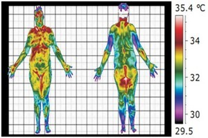 Postural thermography assessment.