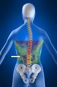 Weefselreactie is bij scoliose patiënten duidelijk in beeld te brengen met behulp van medische infrarood beeldvorming.