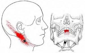 tandpijn2