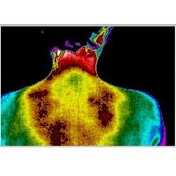 Hoofdpijn met oorzaak in de nek gelegen